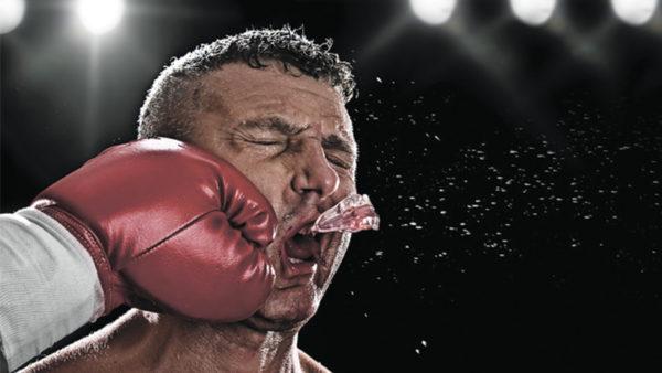 Преимущества индивидуальных капп Защита полости рта, в особенности лицевой части, значительно улучшается при изготовлении индивидуальных капп.