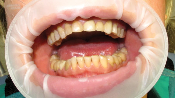 Методы восстановления коронковой части зубов с помощью современных материалов в одно посещение Применение новых стоматологических материалов на примере конкретных клинических случаев.