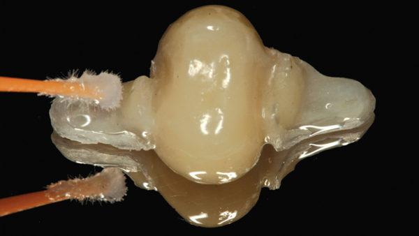 Использование усиленной стекловолоконной системы при адгезивном изготовлении протезов для зубов жевательной группы (клинический случай) Сочетание стекловолокна и композита - превосходная альтернатива адгезивной реставрации.