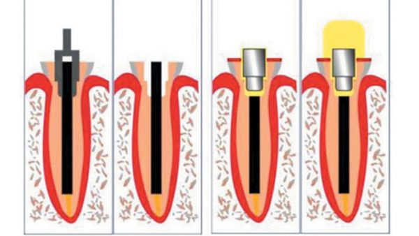 Упроченная реставрация при сколе зуба (клинический случай) Упроченная реставрация при сколе зуба (клинический случай)